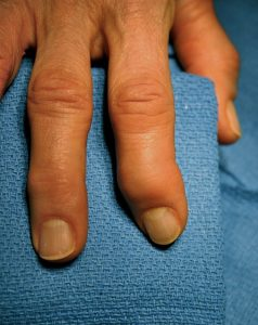 hands with arthritis